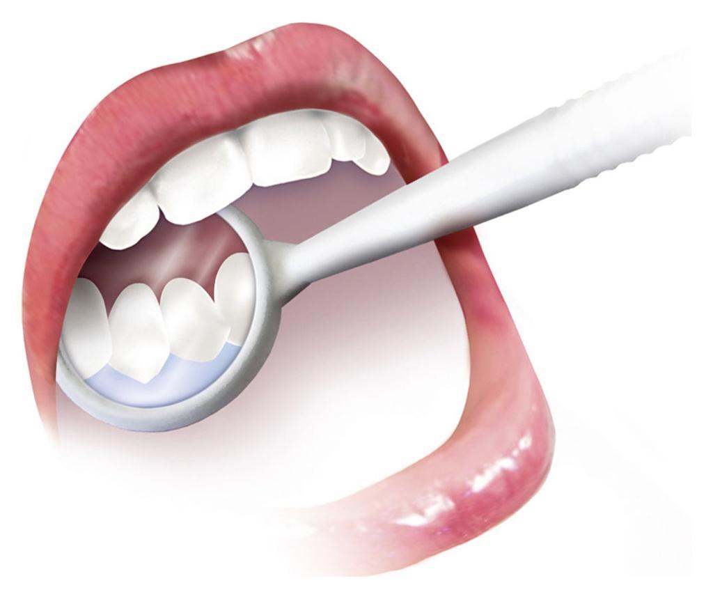 Oglinda dentara